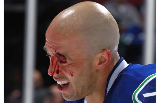 Agree, Recent nhl facial injuries are not